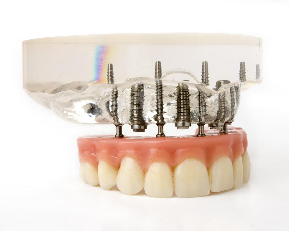 השתלת שיניים בהעמסה מיידית