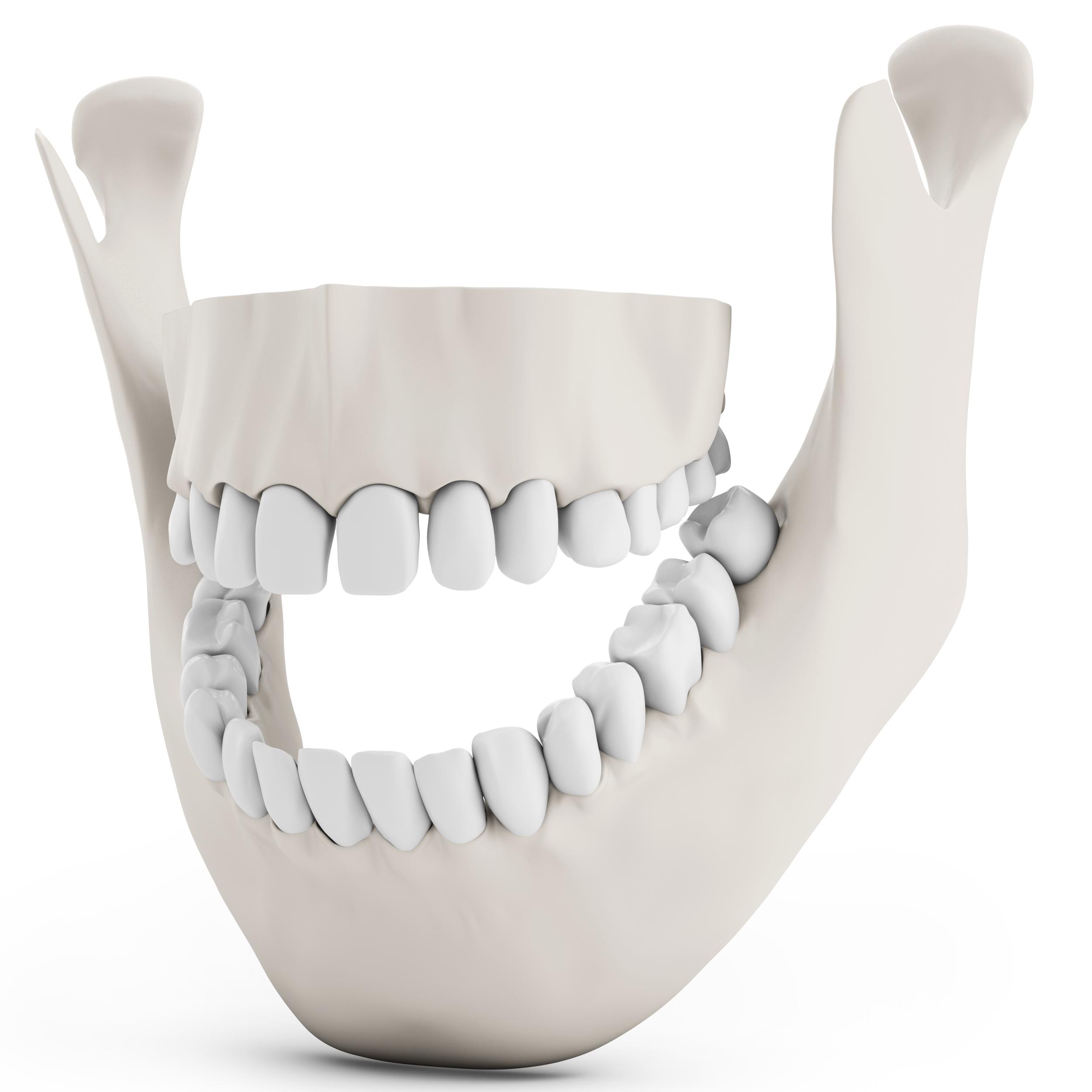 השתלת שיניים, השתלות שיניים - לסת עליונה ותחתונה