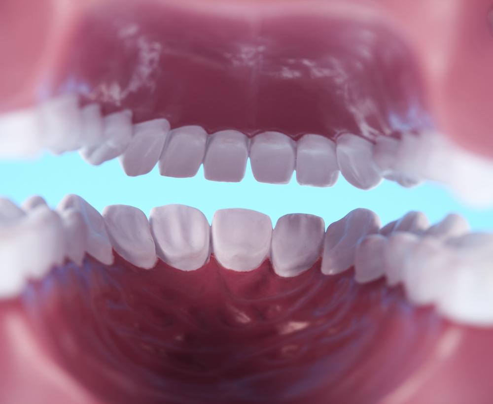 השתלת שיניים וההשפעה של דלקת חניכיים על השתלות שיניים