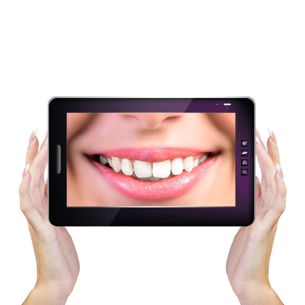 השתלת שיניים ממוחשבת הדור הבא של השתלות שיניים