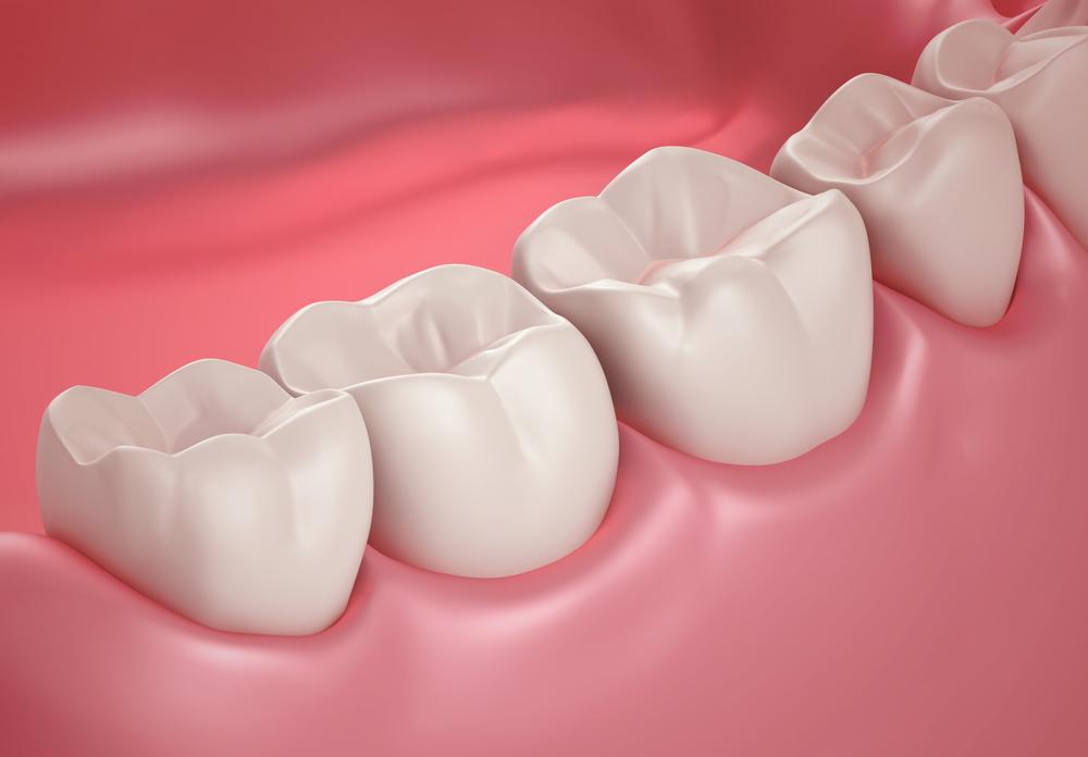 דלקת חניכיים סכנה לשיניים
