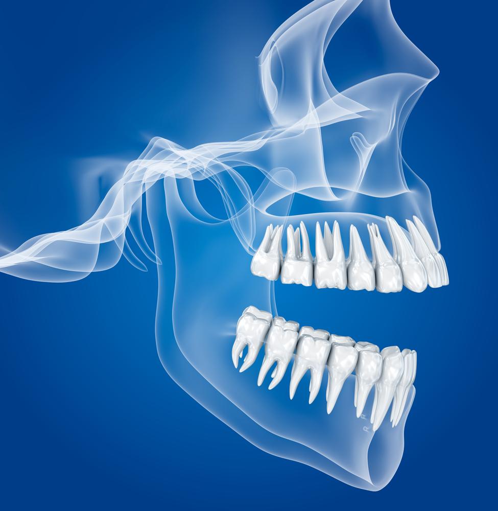 דלקת חניכיים חריפה - פגיעה קשה במערכת השיניים