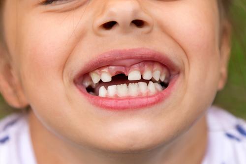 תזוזת שיני חלב אצל ילדים