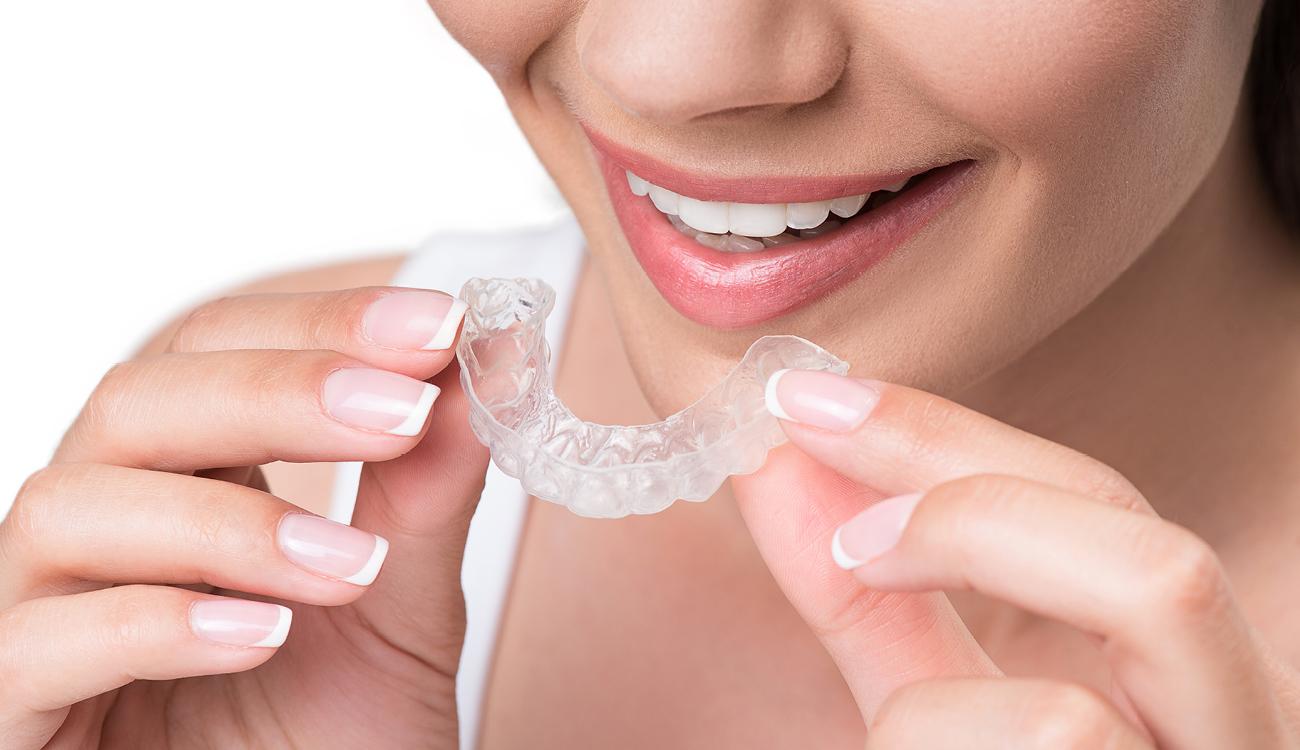 הידוק שיניים